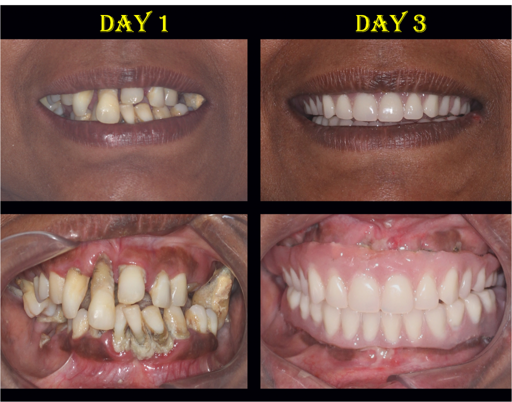 full mouth implants in 3 days